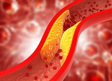 Colesterolul, o substanţă gălbuie, cu aspect ceros, strâns legată de grăsimi se obţine NUMAI consumând produse de origine animală.